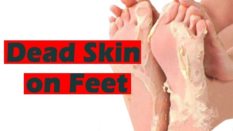 TOP 5 WAYS TO REMOVE DEAD SKIN FROM FEET NATURALLY