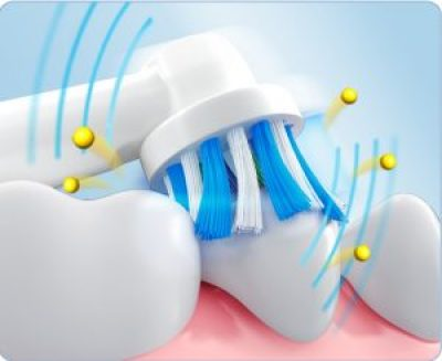 Oral-B Pro 1000 Cross-Action brush head working detail