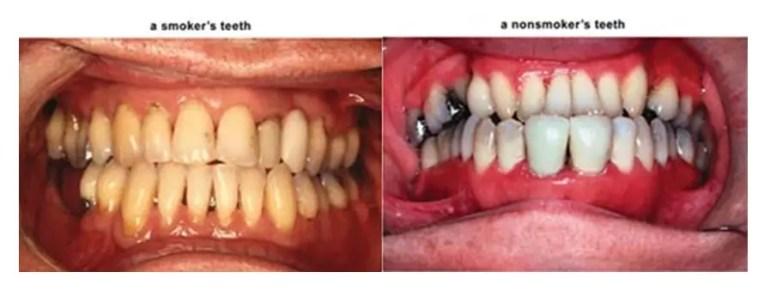 Yellow teeth – smokers vs. nonsmokers