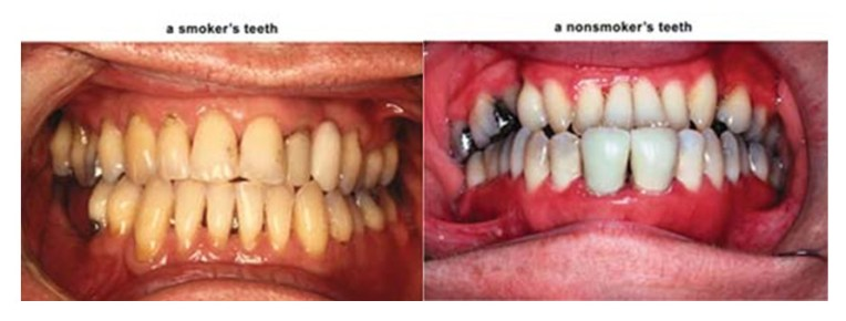 How to reduce the harm of smoking to your dental health ...