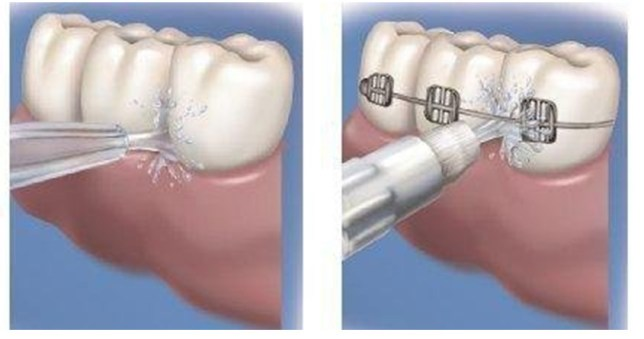 Designed for both normal plaque removal and hoop tooth