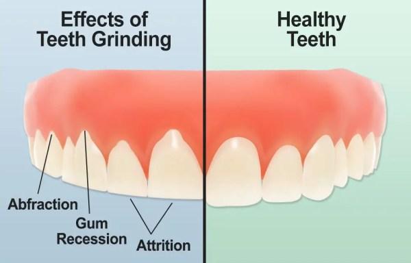 effects of teeth grinding and healthy teeth