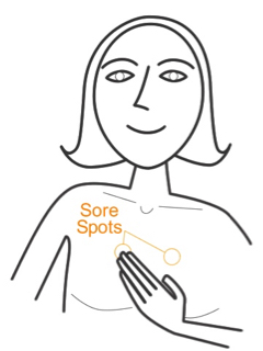 Digram of EFT Sore Spots Beneath Collarbone