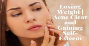 Losing Weight Acne Clear and Gaining Self-Esteem