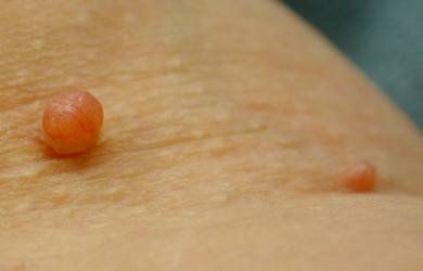 How To Remove Skin Tag Quickly With Apple Cider Vinegar