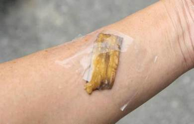 How to Get Rid of Warts Naturally at Home with a Banana Peel