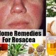 7 Amazing Rosacea Home Remedies