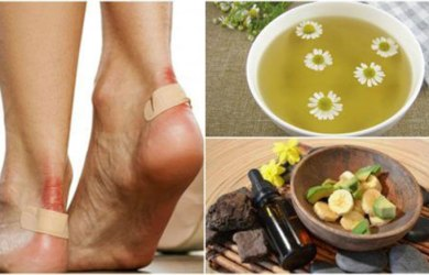 treat blisters naturally