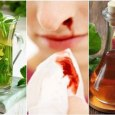 Home Remedies to Stop Bleeding Nose