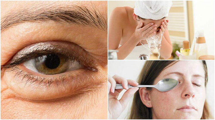Natural Ways To Prevent Under Eye Bags