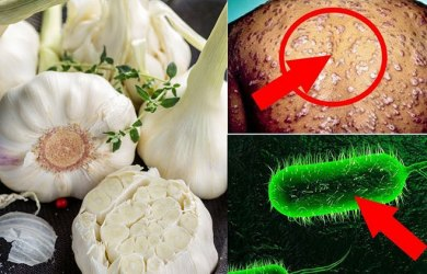 Natural remedies to treat syphilis