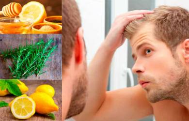Home Remedies to Treat Alopecia Naturally
