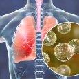 Remedies to Help You Treat Blastomycosis