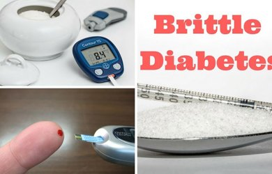 Causes of Brittle Diabetes