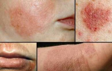 Most Common Types of Eczema