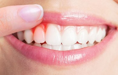 Symptoms and Signs of Gum Disease