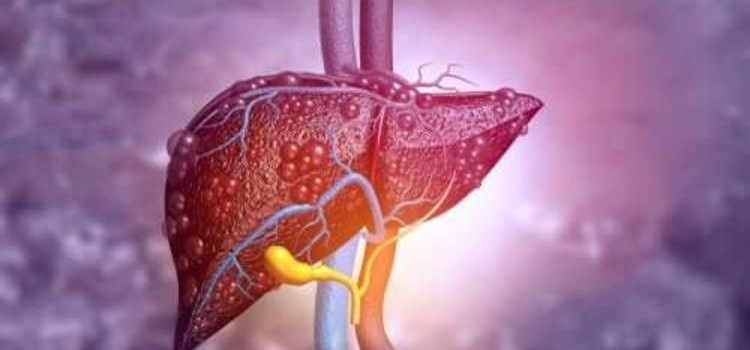 What is Biliary Atresia