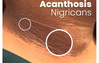 What is Acanthosis Nigricans