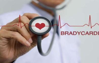 What is Bradycardia