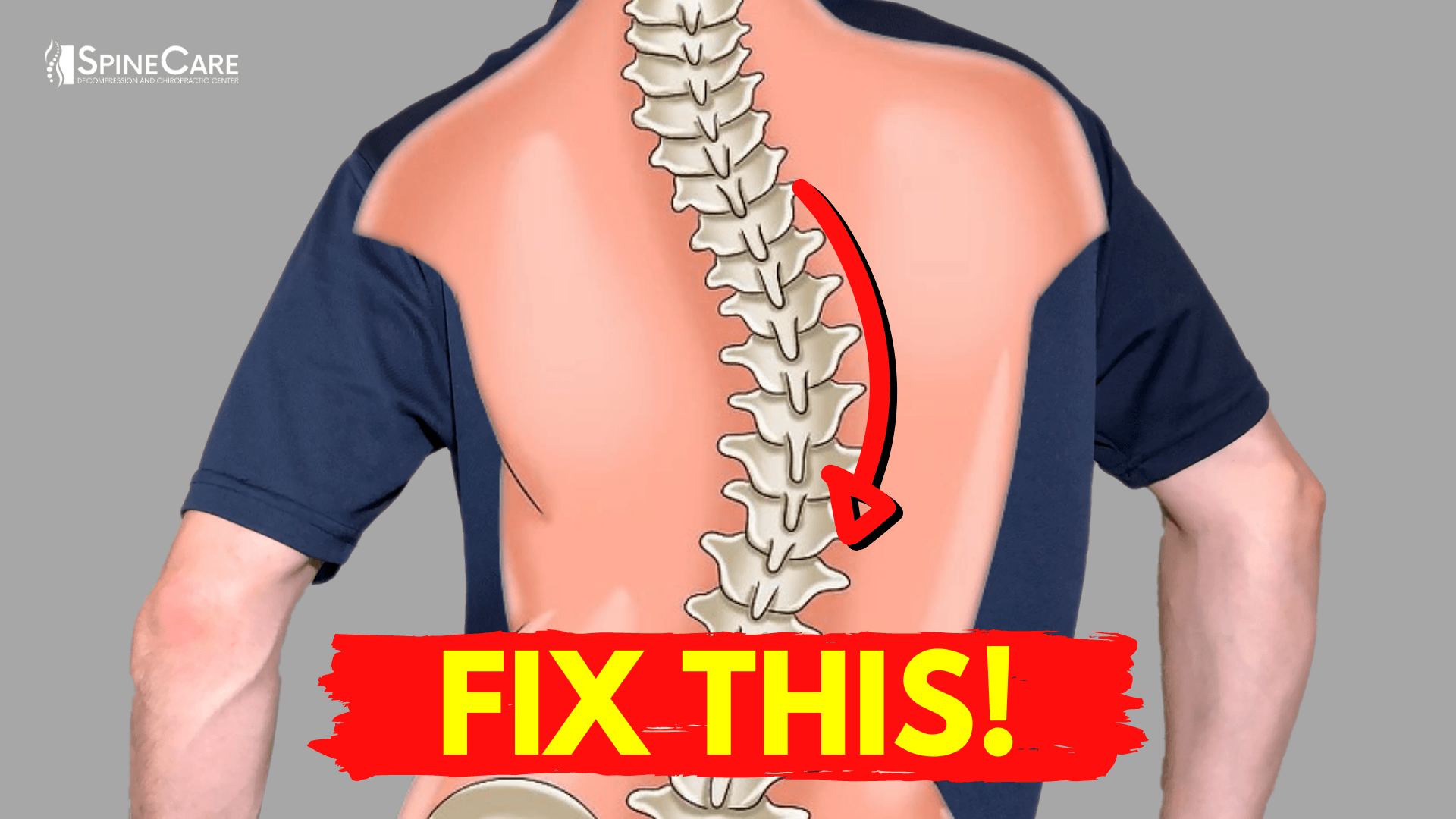 How to Relieve Your Scoliosis Back Pain in 30 SECONDS ...