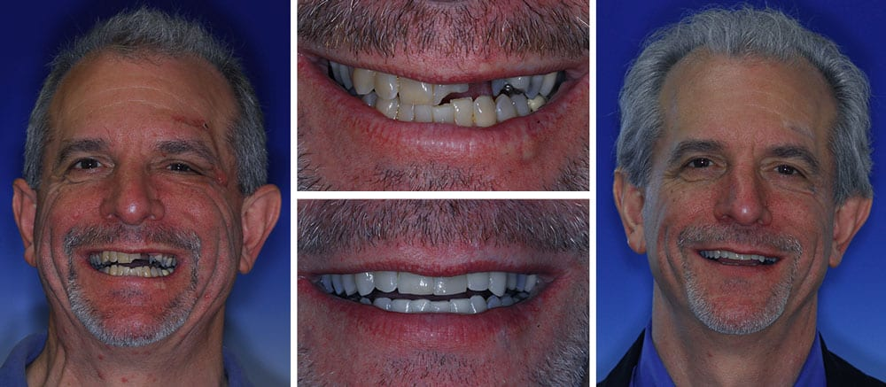Andy - before and after smile - Beth Snyder, DMD