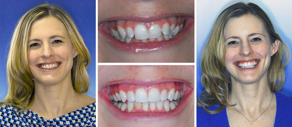 Melissa - before and after smile - Beth Snyder, DMD