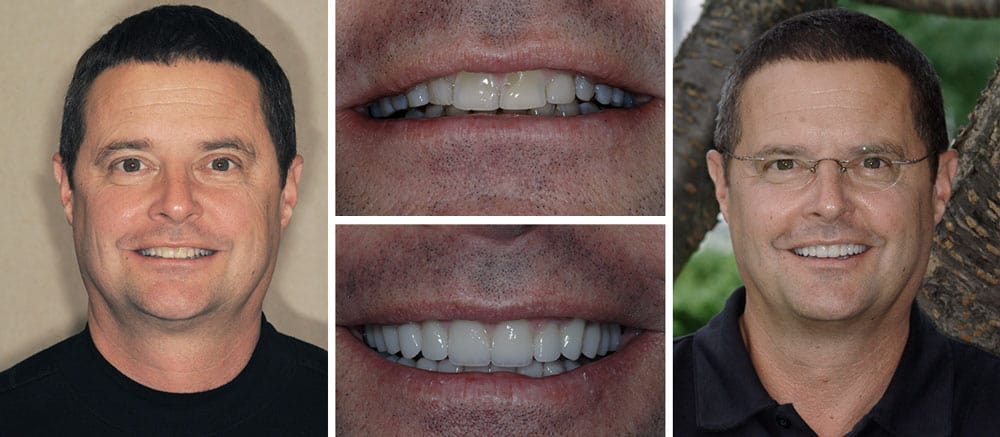 Robert - before and after smile - Beth Snyder, DMD