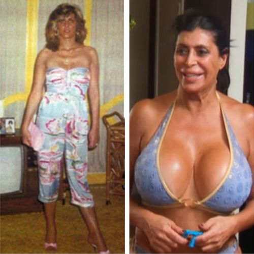 Big Ang plastic surgery before after