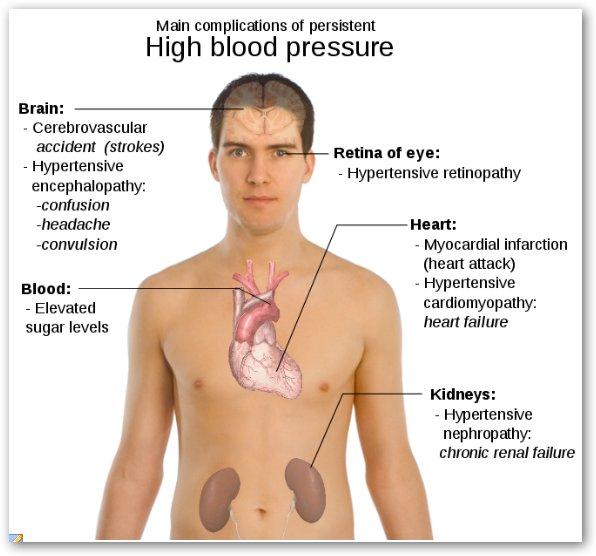 Headache From High Blood Pressure Location - Cluster Headaches