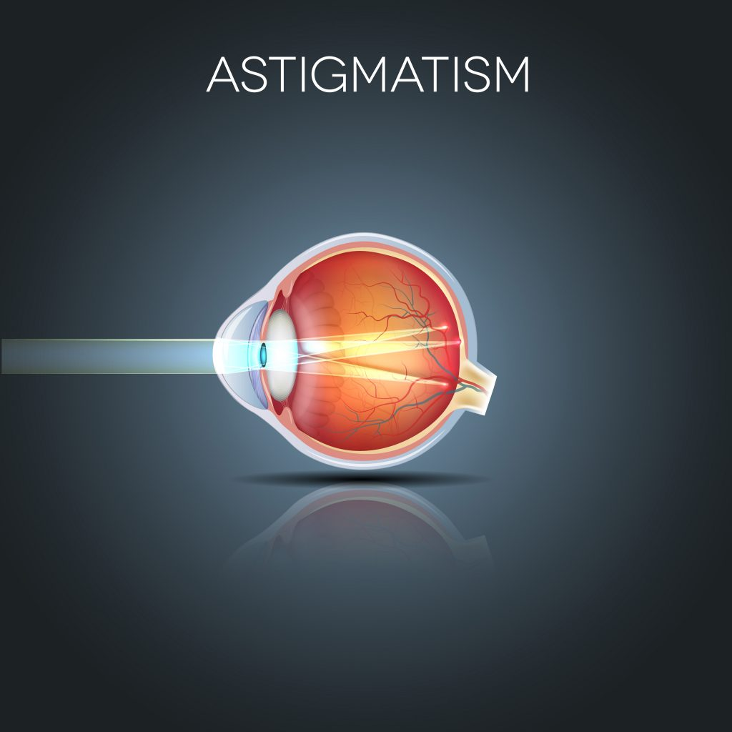Astigmatism Eyes And Dry Contacts