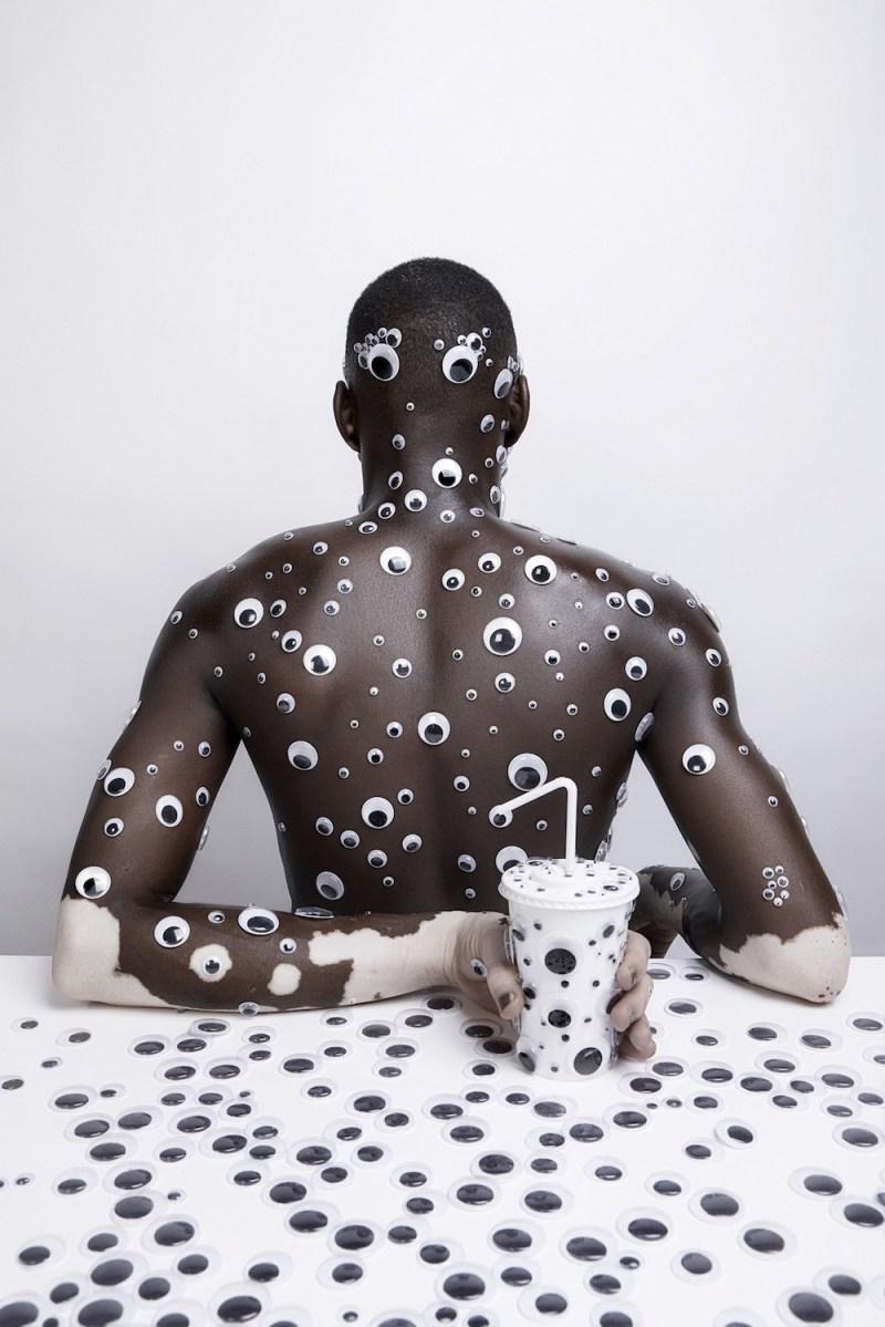 le vitiligo en photo