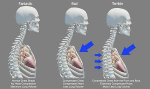 kyphosis-leads-to-disease-death img
