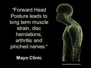 Forward-head-posture-img