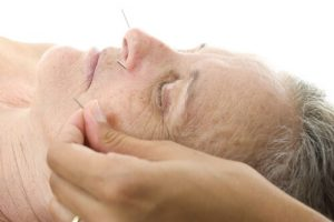elderly woman acupuncture at the spa
