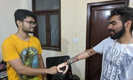 Zeus, Developed by Aether Biomedical,have developed low cost bionic limb for amputees lacking fingers and wrist joints.