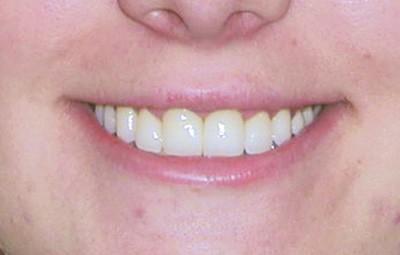 Dental before and after photo - Hester Dental