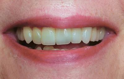 Teeth whitening before photo - Hester Dental