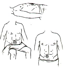 OSTOMY CARE AND MANAGEMENT