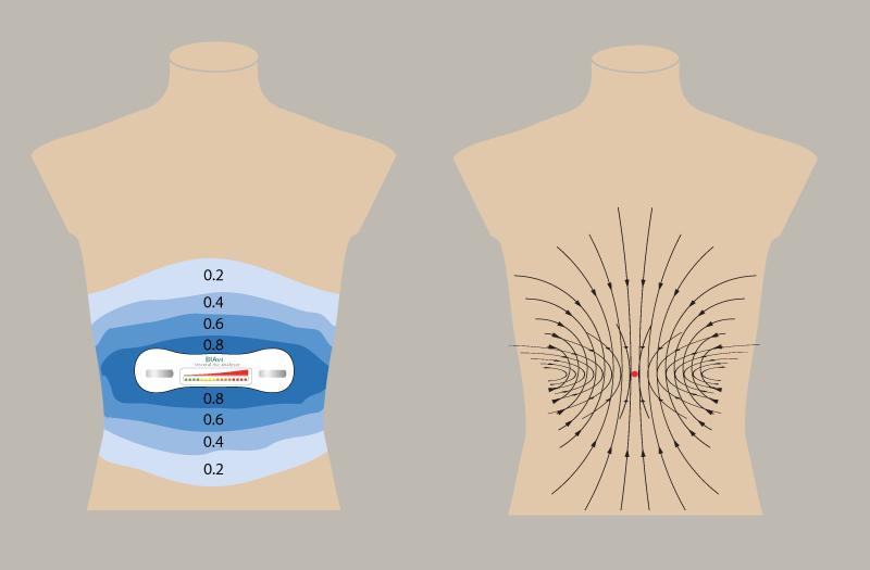 feldlinien-und-potentiallinien-versuch-3d-mit-kleineren-blau-um-bauch