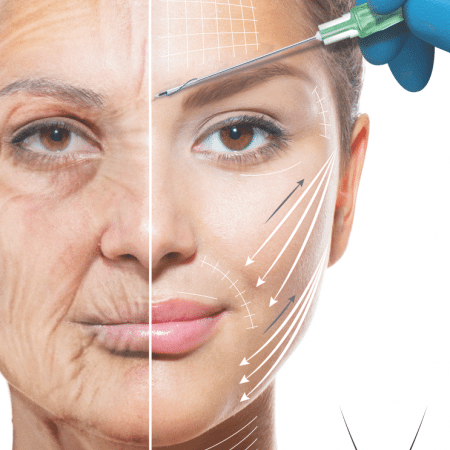 Meso Trax Face Lift  NonSurgical Body Lift  bea Skin Clinic