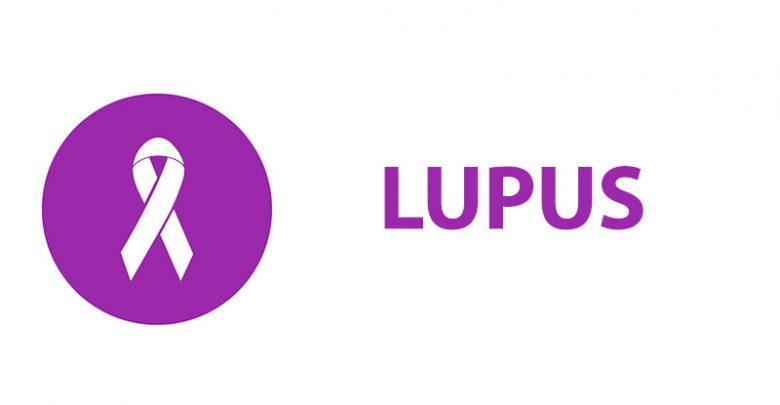 Gejala Lupus