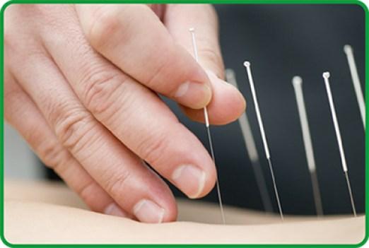 Risultati immagini per aghi agopuntura
