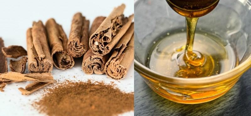 cinnamonhoney--home remedy for pimples