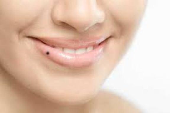 Mole on the Lips