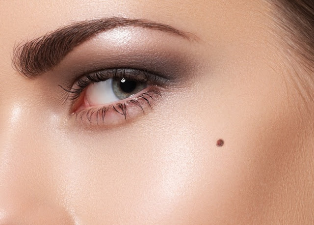 Mole Meaning - The Significance of Birthmarks On Your Face & Body
