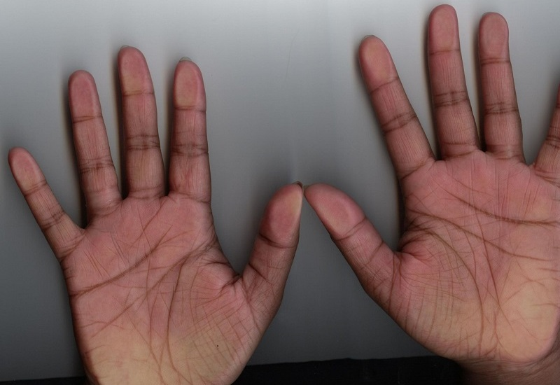 Letter X On Palm Meaning   Here Is What It Reveals About Your