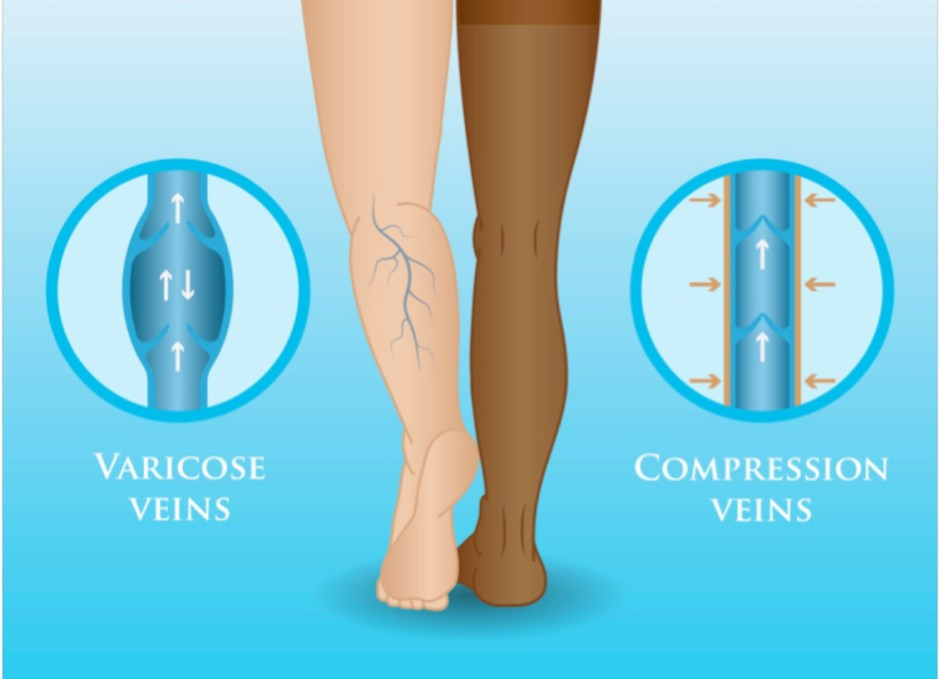 compression socks varicose veins graphic