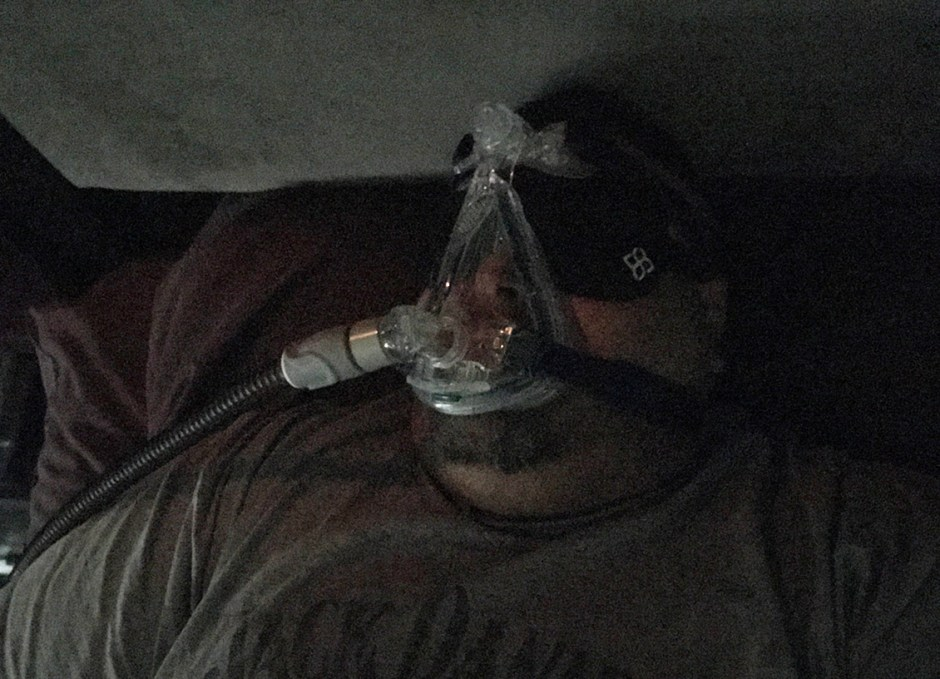 migraine craig with cpap and sleep masks