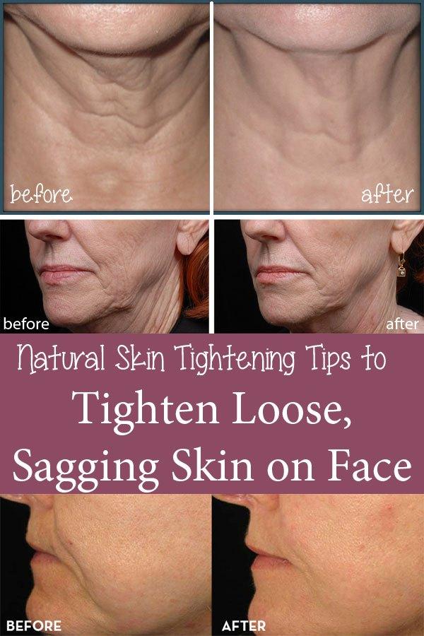 Natural Skin Tightening Tips  BigDIYIdeascom