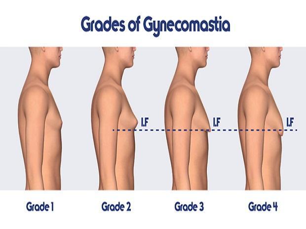 Gynecomastia grades